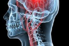 Fellowship in Neurological Rehabilitation