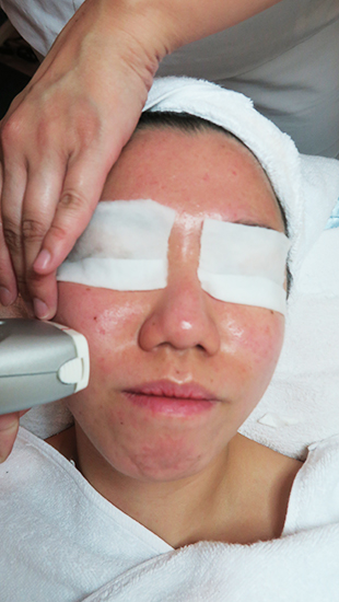 facial for acne md dermatics indulgence 1