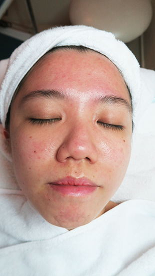 facial for acne md dermatics indulgence 3