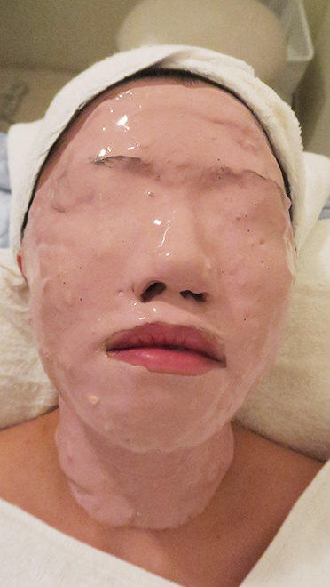 facial for acne md dermatics indulgence 4