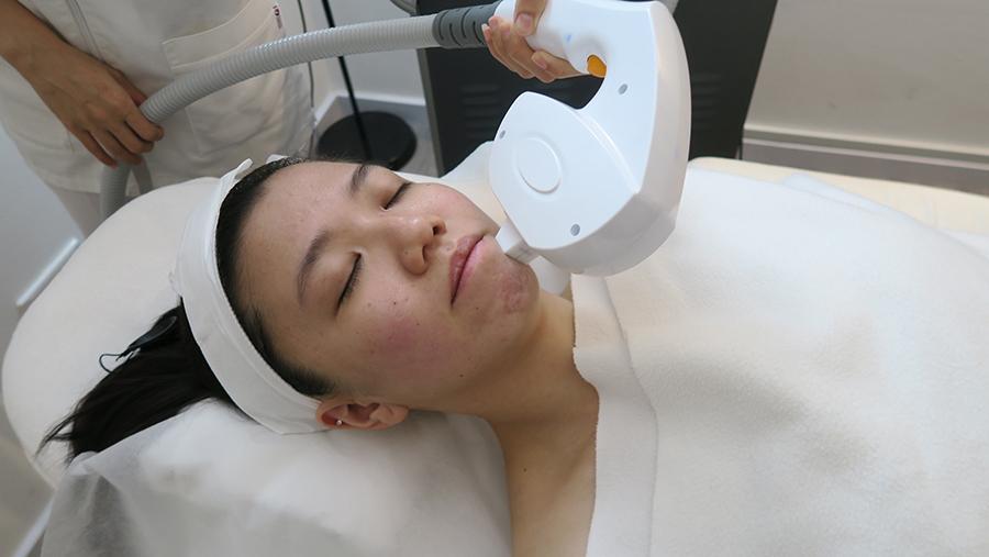 tired skin facial estheclinic 1