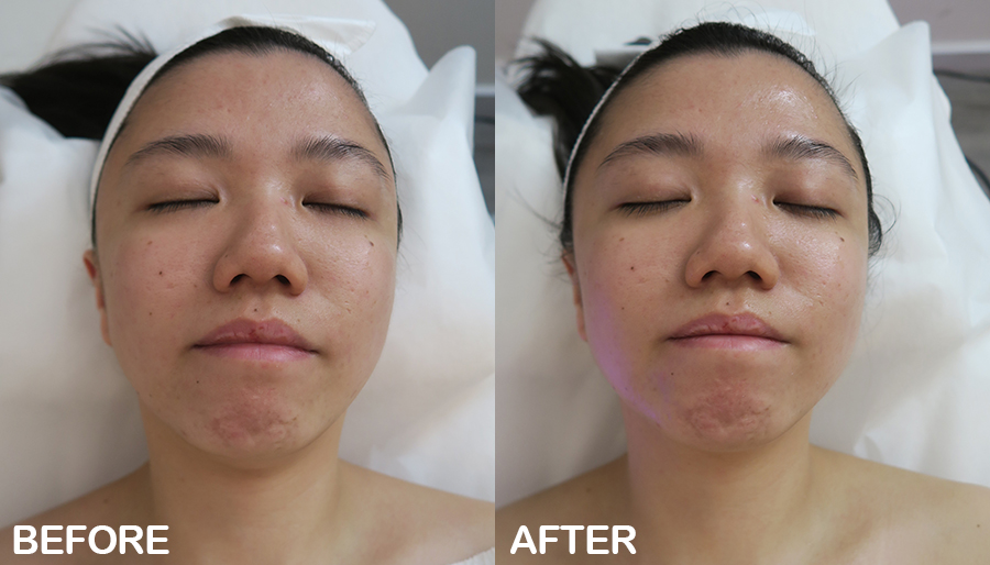 tired skin facial estheclinic before after