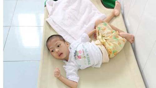 Triệu chứng bại não trẻ em - ảnh 1