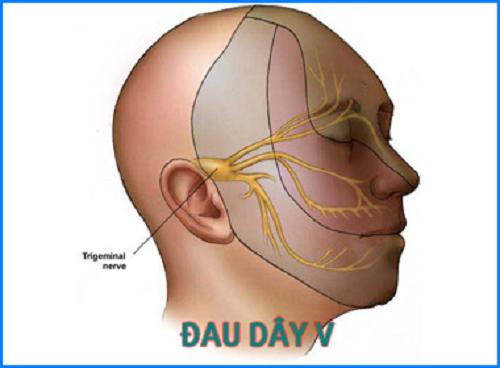 Tổng quan bệnh đau dây thần kinh tam thoa - ảnh 1