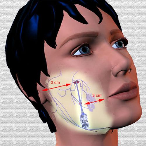 Triệu chứng, biểu hiện đau dây thần kinh tam thoa - ảnh 1