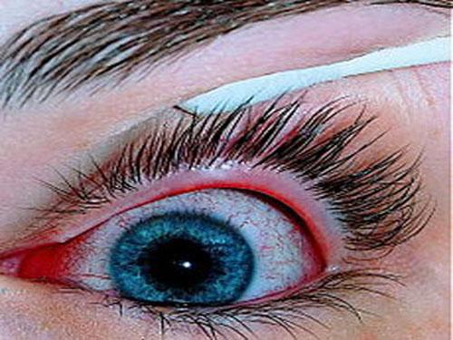 Tổng quan bệnh đau mắt đỏ - ảnh 1