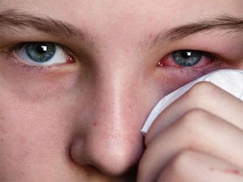 Điều trị bệnh đau mắt đỏ - ảnh 1