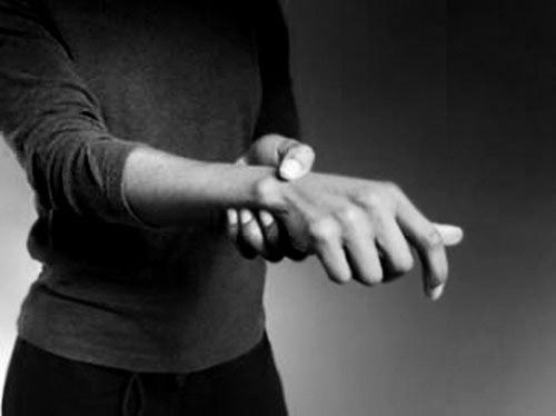 Giới thiệu chung bệnh loạn trương lực cơ - ảnh 1