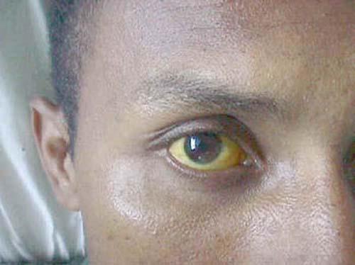 ><figcaption></figcaption></figure></div><h4><span>Triệu chứng cận lâm sàng</span></h4><p>Các xét nghiệm biểu hiện tình trạng nhiễm khuẩn, suy thận, suy gan...</p><ul><li>Xét nghiệm nước tiểu: có hồng cầu, bạch cầu, trụ hạt và trụ trong, tăng protein nhẹ trong nhiễm Leptospira thể nhẹ...</li><li>Xét nghiệm máu: Số lượng bạch cầu thay đổi từ 3.000 đến 26.000. Hạ tiểu cầu gặp trong một nửa các trường hợp. Tốc độ máu lắng tăng. Bilirubin, phospatase kiềm cũng như men transaminase tăng vừa phải so với viêm gan siêu vi trùng. Tỷ lệ prothrombin có thể giảm nhưng đáp ứng tốt với điều trị bằng vitamin K. Men creatine phosphokinase (CPK) tăng trong hơn 50% số bệnh nhân ở tuần đầu của bệnh có thể giúp cho chẩn đoán. Biểu hiện suy thận với tăng ure, creatinin, kali và toan chuyển hoá gặp trong thể nặng.</li><li>Xét nghiệm nước não tuỷ: biến đổi như viêm màng não nước trong, trong giai đoạn đầu thành phần tế bào thường là bạch cầu đa nhân sau đó chuyển thành Monocyte, protein tăng nhẹ, glucose bình thường.</li><li>XQ phổi: Trong bệnh do Leptospira nặng chụp phổi có thể thấy mờ ở nhu mô, thường ở thuỳ dưới phía lưng do chảy máu.</li></ul></div></div><div class=
