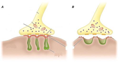 ><figcaption></figcaption></figure></div><ul><li>Bệnh nhược cơ cũng thường đi kèm với các bệnh rối loạn tự miễn dịch khác như: Lupus ban đỏ hệ thống, viêm đa khớp dạng thấp, bệnh Basedow, bệnh Hashimoto...</li><li>Tuyến ức đóng vai trò rất quan trọng, cụ thể là:</li></ul><p>Đại đa số bệnh nhân nhược cơ đều có tuyến ức không bình thường, trong đó chủ yếu là tuyến ức tăng sản với các