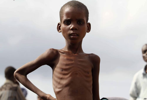 ><figcaption></figcaption></figure></div><ul><li>Thể phù (Kwashiokor): Cân nặng giảm từ 20-40%. Trẻ phù toàn thân, trên da có thể xuất hiện các mảng sắc tố màu nâu và lở loét toàn thân.</li><li>Thể phối hợp: Cân nặng giảm trên 40%, từ gầy yếu và phù 2 chân. Trẻ suy dinh dưỡng thường bị thiếu máu, thiếu vitamin đặc biệt là thiếu vitamin A gây khô mắt.Những trẻ suy dinh dưỡng nhất là ở trẻ nhỏ, nếu bị suy dinh dưỡng nặng sẽ ảnh hưởng nhiều đến phát triển thể chất, tinh thần và vận động. Trẻ chậm biết lẫy, bò, ngồi, đứng, đi. Khi trẻ lớn lên cân nặng và chiều cao đều giảm hơn so với người cùng tuổi, trẻ gái thì đẻ khó và khi làm mẹ dễ sinh ra những bé còi cọc. Một số công trình nghiên cứu đã chứng tỏ các tế bào thần kinh ở não không phát triển đầy đủ sẽ ảnh hưởng đến trí tuệ, giảm trí nhớ và kém thông minh.<div><span>Trẻ suy dinh dưỡng dễ mắc các bệnh nhiễm khuẩn và nhiễm khuẩn có thể làm cho suy dinh dưỡng nặng hơn. Suy dinh dưỡng bị mù do thiếu vitamin A thì tỷ lệ tử vong cao.</span></div></li></ul><h4>Biểu hiện của suy dinh dưỡng ở người cao tuổi</h4><p>Hầu hết người bị suy dinh dưỡng có thể tự phát hiện thấy mình bị gầy đi như: sụt cân, quần áo thấy tự nhiên rộng ra, các bắp thịt thấy mềm, nhũn không được rắn chắc như trước đây.</p><div class=