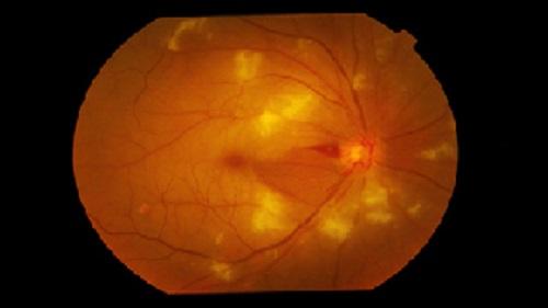 ><figcaption></figcaption></figure></div><h4>Bệnh có thể có các hình thái lâm sàng như sau:</h4><ul><li>Mù một mắt thoáng qua co thắt động mạch. Bệnh nhân đột ngột mù hoàn toàn một mắt, kéo dài trong vài phút, đáy mắt hoàn toàn bình thường.</li><li>Tắc nhánh động mạch trung tâm võng mạc. Bệnh nhân bị giảm thị lực đột ngột, khuyết thị trường tương ứng với khu vực động mạch bị tổn thương. Soi đáy mắt thấy phù võng mạc khu vực tắc do thiếu tưới máu.</li><li>Tắc động mạch trung tâm ở người có động mạch mi - võng mạc. Khoảng 20% số người có thêm động mạch mi - võng mạc có nguồn gốc từ hắc mạc, nuôi dưỡng cho vùng giữa gai thị và hoàng điểm. Trường hợp này thị lực có thể giảm ít hoặc nhiều. Soi đáy mắt còn thấy một vùng võng mạc hồng hình tam giác ở giữa gai thị và hoàng điểm lọt giữa võng mạc cực sau bị phù tràn ngập.</li><li>Tắc động mạch mi - võng mạc đơn độc. Bệnh nhân bị giảm thị lực, đáy mắt có phù trắng một vùng giữa gai thị và hoàng điểm. Võng mạc xung quanh không tổn thương.</li><li>Tắc tiểu động mạch, không gây triệu chứng trên lâm sàng, nhưng khi khám đáy mắt thấy những đám xuất tiết trắng mềm như bông bờ mờ, ở nông, che lấp các mạch máu, nằm trong lớp sợi thị giác.</li><li>Nếu bệnh nhân đến sớm trong vòng 2 giờ sau khi bị bệnh, thị lực có thể phục hồi. Đáy mắt, phù võng mạc mất đi sau vài ngày, động mạch lưu thông lại bình thường. Trường hợp tắc nhánh động mạch, các tổn thương ổn định. Tuy nhiên, thường bệnh nhân đến muộn, vì vậy tiến triển không tốt. Thị lực mất hoàn toàn, teo gai thị sau 1 tháng, co hẹp các động mạch võng mạc, mạch máu có thể xơ trắng.</li></ul></div></div><div class=