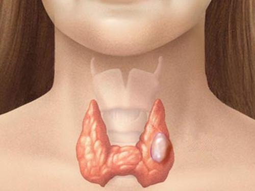 ><figcaption></figcaption></figure></div><ul><li>Ung thư dạng nhú phát triển từ các tế bào sản xuất các hoóc-môn tuyến giáp chứa i-ốt. Các tế bào ung thư phát triển rất chậm và tạo thành nhiều cấu trúc nhỏ hẹp hình nấm trong khối u. Các bác sĩ thường điều trị thành công các khối u này thậm chí ngay cả khi các tế bào u đã lan sang các hạch bạch huyết lân cận. Các khối u dạng nhú chiếm khoảng 80% toàn bộ các dạng ung thư tuyến giáp.</li><li>Các khối u dạng nang cũng phát triển từ các tế bào tạo hoóc-môn chứa i-ốt. Những khối u này có một lớp mô mỏng bao quanh được gọi là vỏ. Nhiều u dạng nang có thể được chữa khỏi. Tuy nhiên, bệnh có thể khó kiểm soát được nếu khối u xâm lấn vào mạch máu hoặc tăng trưởng xuyên qua vỏ sang các cấu trúc vùng cổ lân cận. Khoảng 17% ung thư tuyến giáp là các u dạng nang.</li><li>Các khối u dạng tuỷ ảnh hưởng các tế bào tuyến giáp sản xuất hoóc-môn không chứa i-ốt. Mặc dù những khối u này phát triển chậm nhưng chúng khó kiểm soát hơn so với các u dạng nang và dạng nhú. Các tế bào ung thư có xu thế lan sang các bộ phận khác của cơ thể. Chỉ có khoảng 5% các loại ung thư tuyến giáp là các khối u dạng tuỷ. Người ta dự đoán rằng cứ 10 người bị ung thư tuyến giáp dạng tuỷ thì có 1 người là do di truyền.</li><li>Các khối u không biệt hóa là loại tăng trưởng nhanh nhất trong tất cả các loại khối u tuyến giáp. Các tế bào ung thư, đặc biệt bất thường, lan rất nhanh sang các bộ phận khác của cơ thể. Các khối u không biệt hóa chiếm khoảng 15% trong tổng số ung thư tuyến giáp và thường xuất hiện ở những người trên 60 tuổi.</li></ul></div></div><div class=