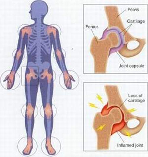 Điều trị viêm khớp thiếu niên - ảnh 2