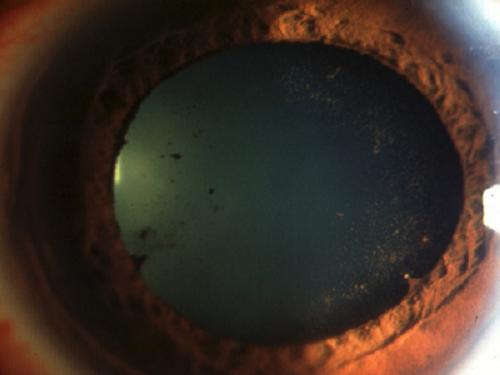 ><figcaption></figcaption></figure></div><h4>Thực thể</h4><ul><li>Cương tụ rìa: Cương tụ sâu ở kết mạc, có thể thấy rất rõ những mạch máu giãn to, màu tím sẫm, ngoằn ngoèo.</li><li>Mống mắt: Sẫm màu, kém xốp, đồng tử co nhỏ và phản xạ áng sáng giảm hoặc mất. Ở giai đoạn muộn đồng tử có thể bị méo mó do dính vào mặt trước thể thuỷ tinh.</li><li>Thuỷ dịch: Vẩn đục, khám trên sinh hiển vi sẽ thấy dấu hiệu Tyndall (+).</li><li>Thể thuỷ tinh: Có những chấm sắc tố mống mắt bám ở mặt trước, nhiều khi những chấm, đám sắc tố mống mắt này xếp theo dạng vòng tròn tương ứng với bờ đồng tử.</li><li>Mặt sau giác mạc: Có thể có tủa, đó chính là những chấm lắng đọng protein từ thuỷ dịch - sản phẩm của quá trình viêm.</li><li>Sờ phản ứng thể mi: Bệnh nhân đau (phản ứng dương tính).</li><li>Nếu bệnh nhân đến ở giai đoạn muộn, các triệu chứng cơ năng không còn rõ nữa, hầu như chỉ còn dấu hiệu mắt mờ. Các triệu chứng thực thể khi đó cũng khác xa so với giai đoạn trước</li><li><span>Mống mắt: Teo, bạc màu, có thể có hình ảnh núm quả cà chua do nghẽn đồng tử, thuỷ dịch ứ lại ở hậu phòng đẩy vồng mống mắt về phía giác mạc.</span></li><li>Đồng tử: Thu nhỏ, dính tít hoặc méo mó do dính vào mặt trước thể thuỷ tinh. Phản xạ với ánh sáng của đồng tử lúc này sẽ bị hạn chế do dính. Diện đồng tử có thể bị màng viêm che kín.</li><li>Thể thuỷ tinh, dịch kính: Có thể bị vẩn đục ở các mức độ khác nhau. Do màng viêm cùng với thể thủy tinh đục che khuất, dấu hiệu đục dịch kính chỉ có thể được phát hiện bằng siêu âm.</li><li>Nhãn áp: Tăng thứ phát do nghẽn đồng tử, nghẽn vùng bè hoặc có thể hạ do teo thể mi.</li></ul></div></div><div class=