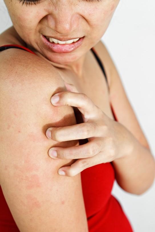 Penyebab Gatal-gatal saat Hamil dan Cara Mengatasinya