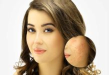 Easy Acne Scars Treatment with Dr. Harold Lancer