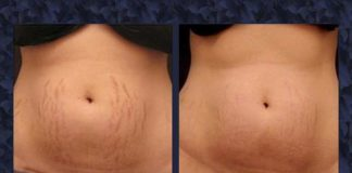 Stretch Marks Removal Tips by Dr. Harold Lancer