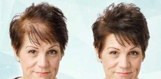 7 Most Effective Home Remedies for Hair Thinning