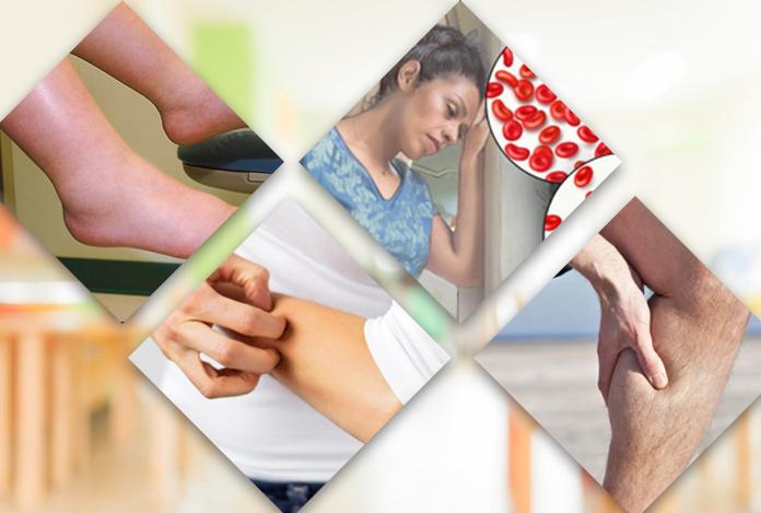 Symptoms for Chronic Kidney Disease