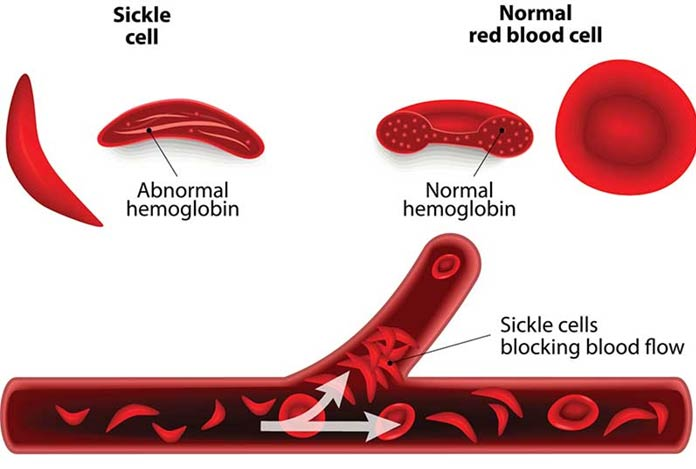 the main characteristics and treatment of sickle cell anemia Osteomyelitis: a manifestation of sickle cell  this shows parallel characteristics with that of  osteomyelitis: a manifestation of sickle cell anemia clin.