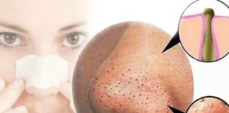 Simple Ways to Get Rid of Blackheads