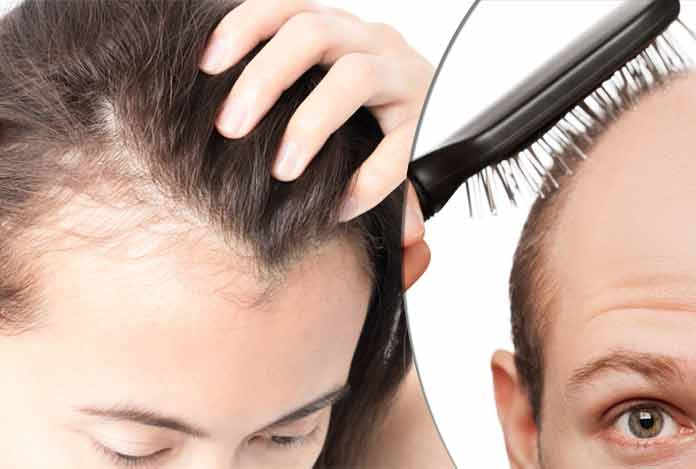 Alopecia Types Symptoms Causes Treatment