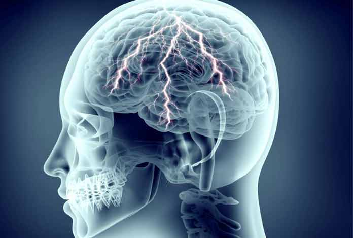 Seizures- Types, Symptoms, Causes, Diagnosis, Prevention and Treatment