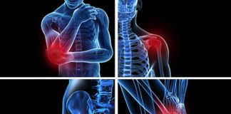 Non-Conventional Ways of Treating Bursitis by Dr. Weil